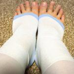 産後の足のむくみは着圧ソックスでケア!夏の熱い夜におすすめのメディキュット